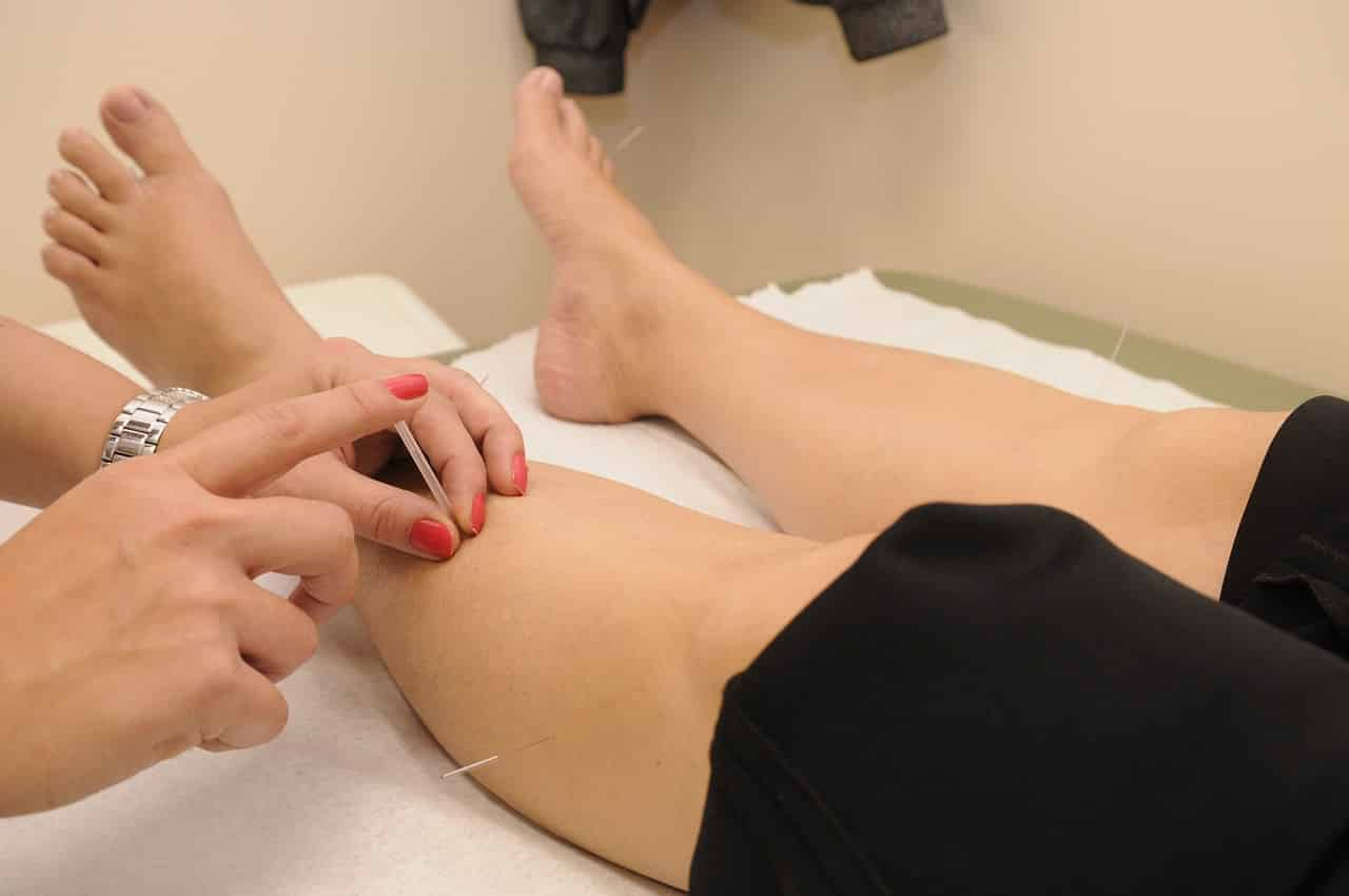 Comment mincir grâce à l'acupuncture