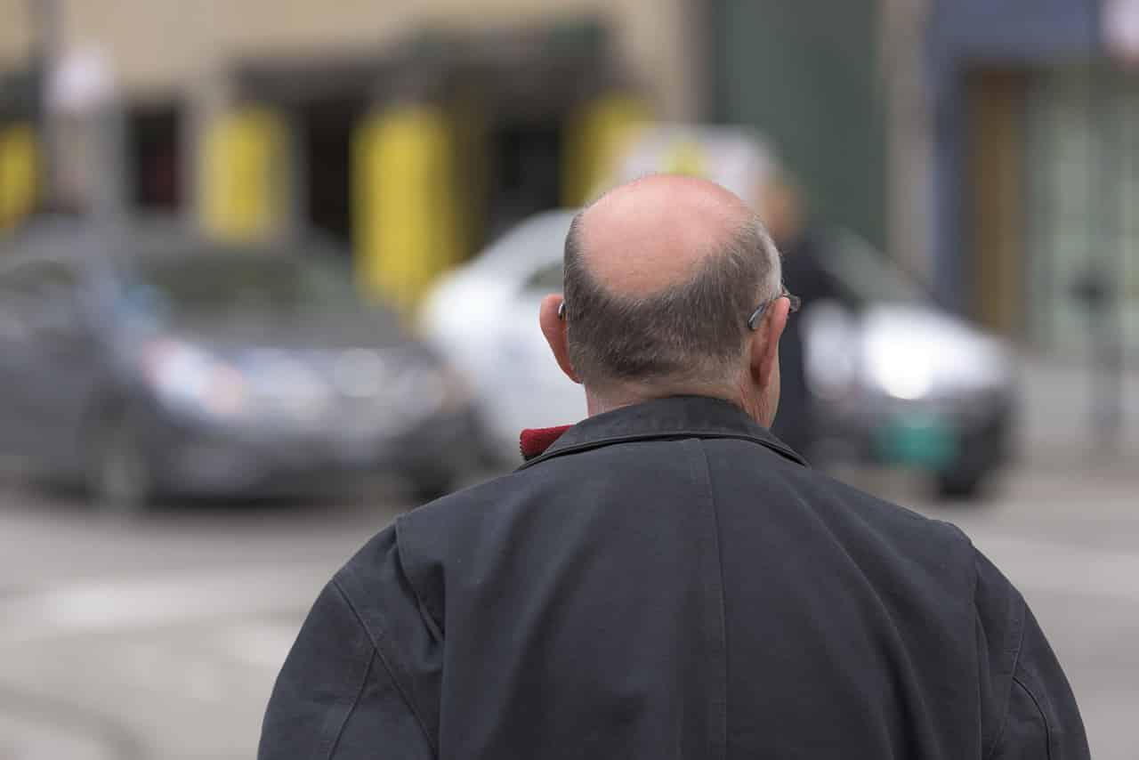 Pourquoi les hommes sont-ils plus sujets à la chute des cheveux que les femmes ?