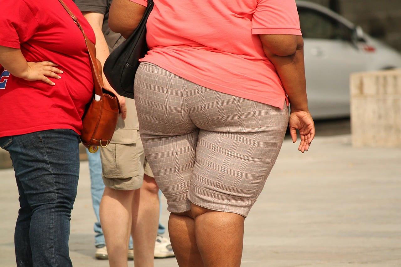 obésité morbide définition