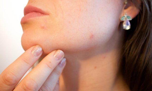 Comment soigner son acné?