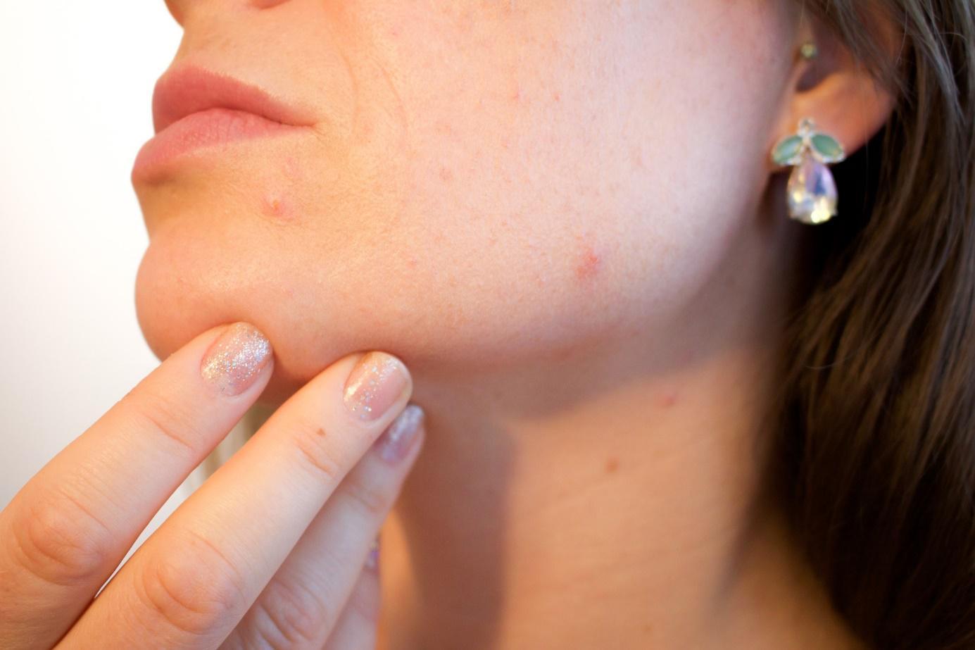 comment soigner l'acné