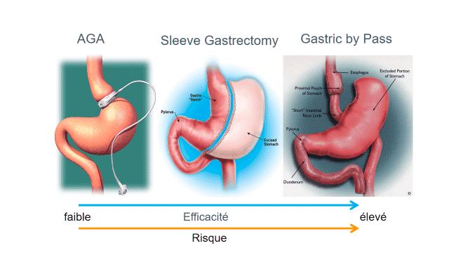 Les principales techniques de chirurgies bariatriques