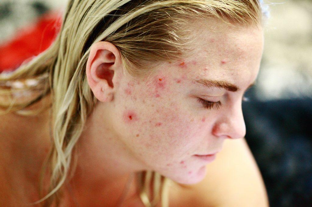 Une adolescente atteinte de poussée d'acné violente