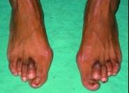 Pied de handballeuse : griffe des orteils, Hallux valgus, hyper kératose, Hématome sous-ungéal
