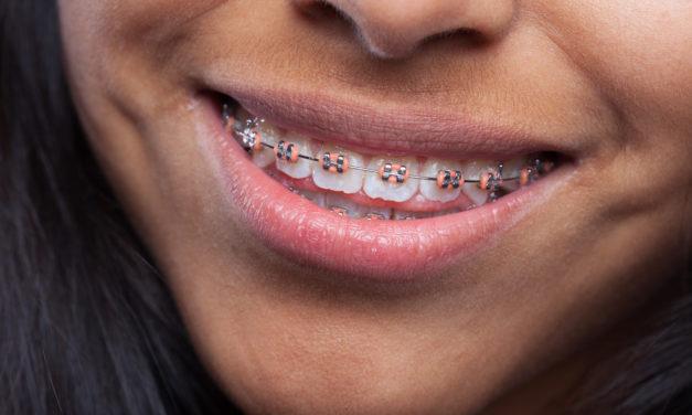 Orthodontie pour enfant : à quel âge faut-il consulter ?