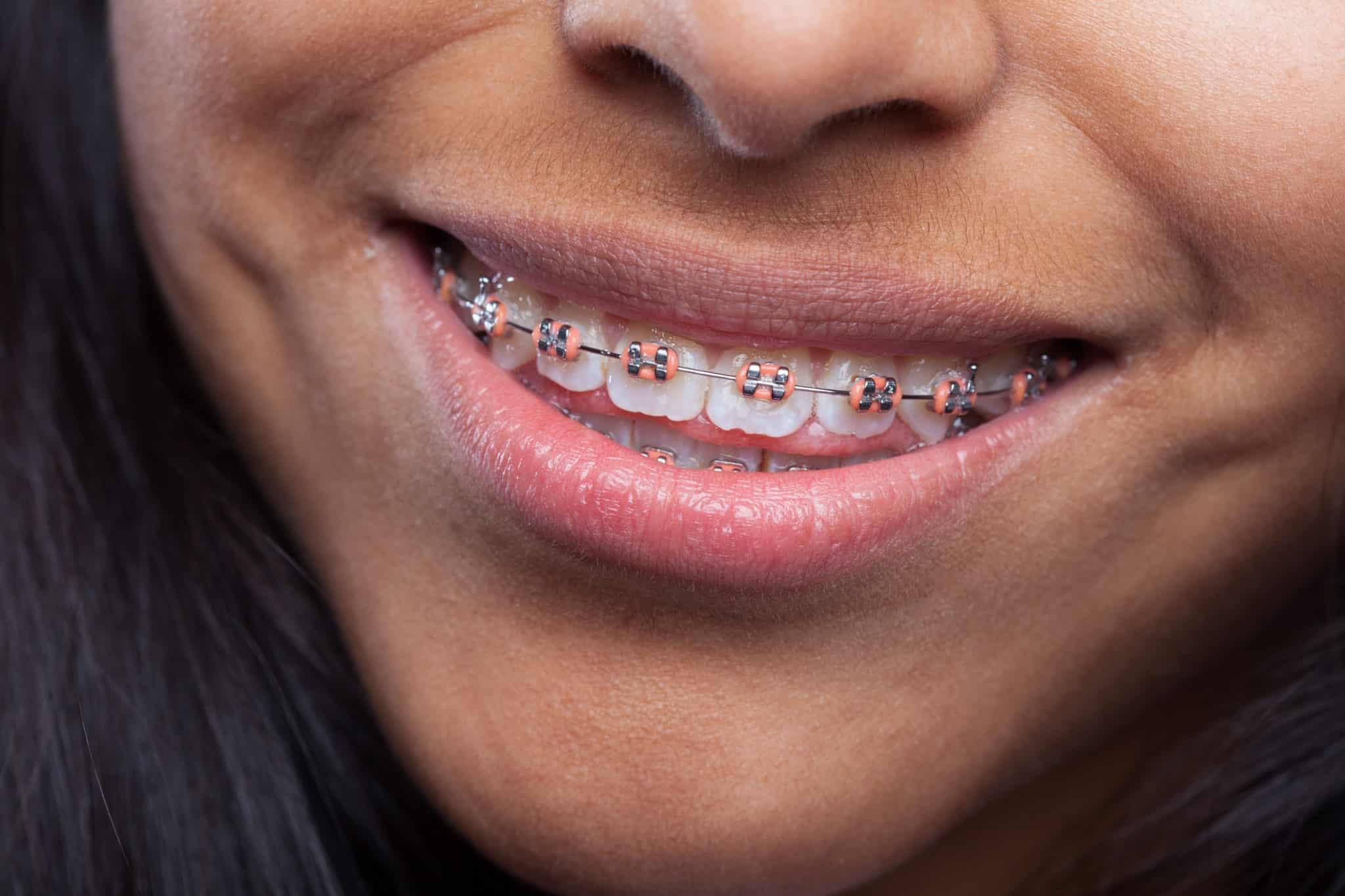 Un sourire d'enfant avec un appareil dentaire