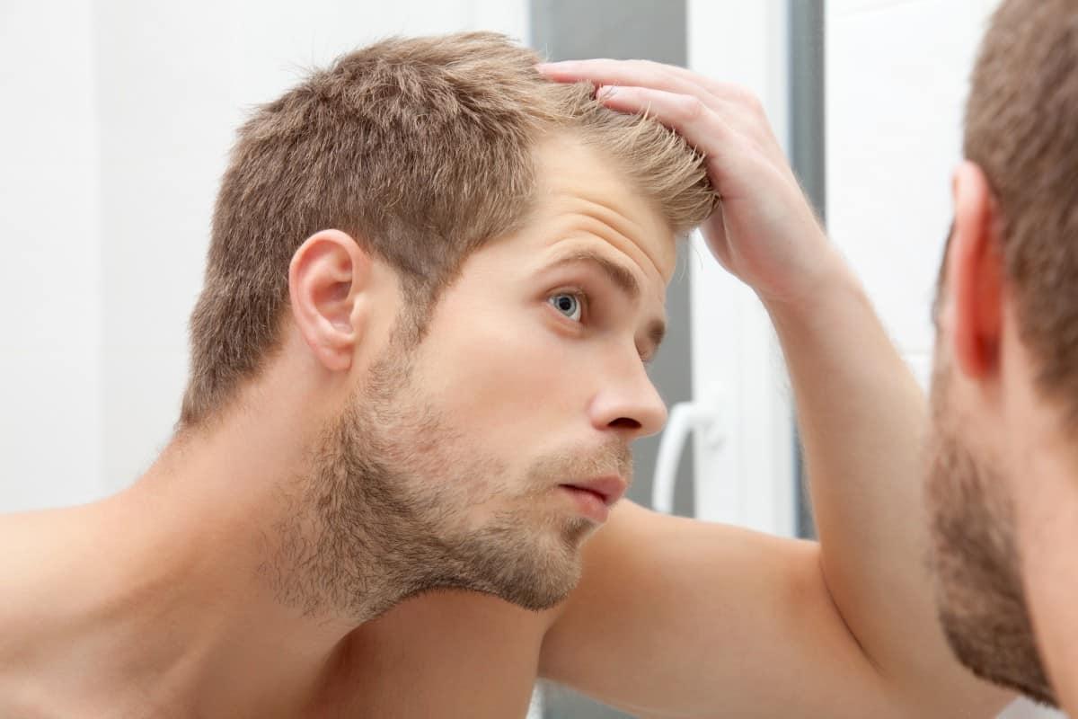Un homme souffrant de perte de cheveux