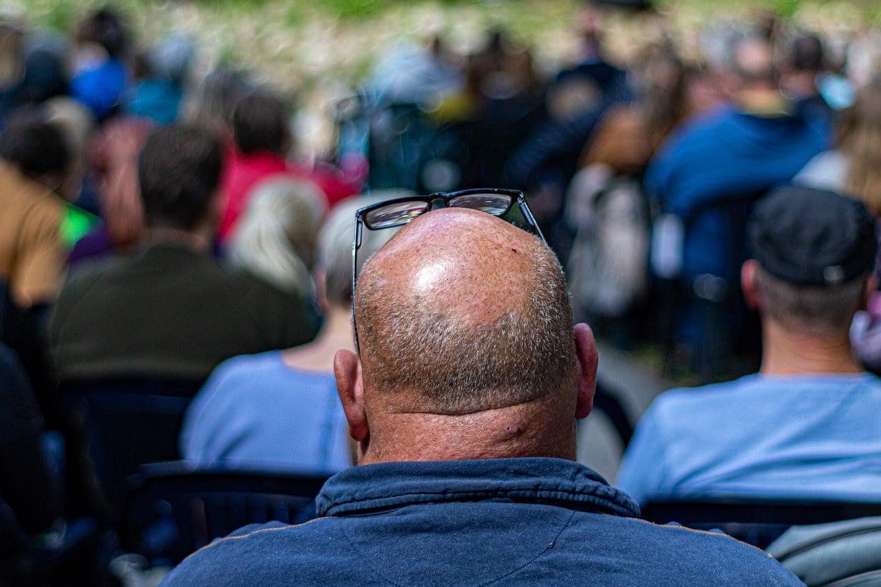 homme atteint d'alopécie
